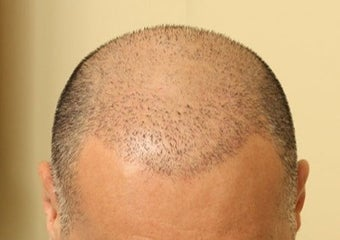 45-54 year old man treated with Hair Transplant Scalp MicroPigmentation SMP before 1967606