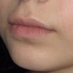 23 year old woman treated with Juvederm in Lips before 3251531