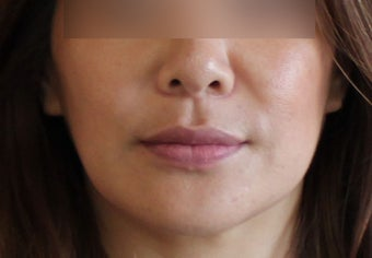 Lip Implant after 944166