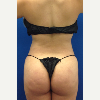 35-44 year old woman treated with Laser Liposuction with fat transfer to the buttock after 3220647