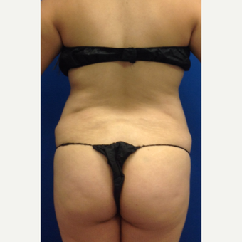 35-44 year old woman treated with Laser Liposuction with fat transfer to the buttock before 3220647