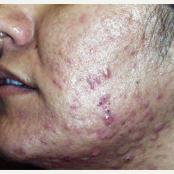 25-34 year old woman treated with Photodynamic Therapy before 3447419