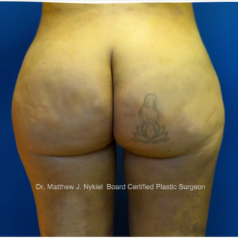 35-44 year old woman treated with Brazilian Butt Lift Revision after 2967748