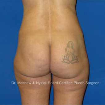 35-44 year old woman treated with Brazilian Butt Lift Revision before 2967748