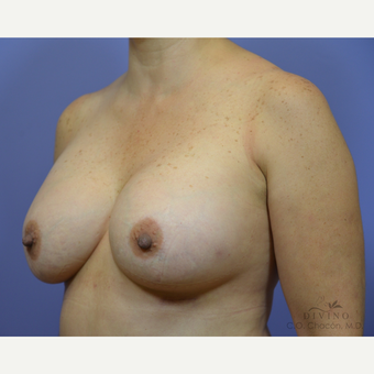 45-54 year old woman treated with Breast Augmentation after 3418986