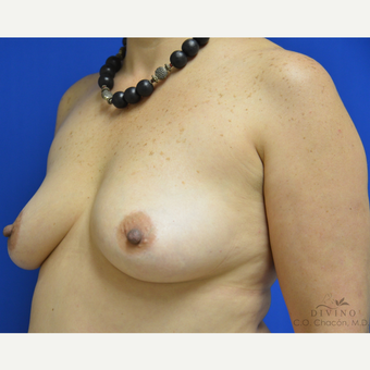 45-54 year old woman treated with Breast Augmentation before 3418986