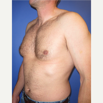 35-44 year old man treated with Male Breast Reduction before 3098498