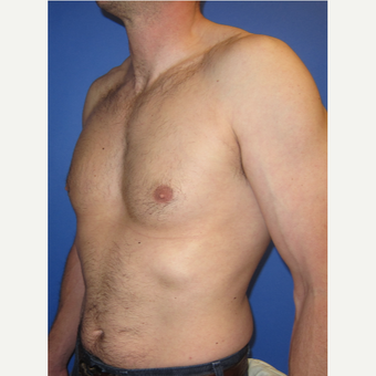 35-44 year old man treated with Male Breast Reduction after 3098498