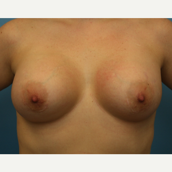 33 year old woman treated with Breast Augmentation after 3482770