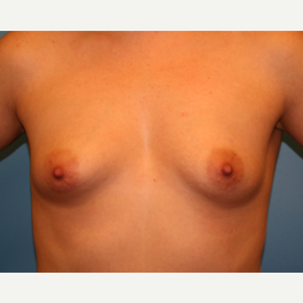 33 year old woman treated with Breast Augmentation before 3482770