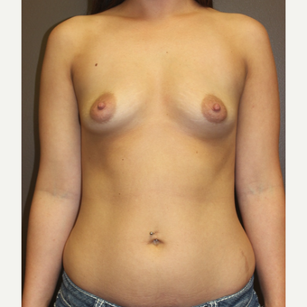 18-24 year old woman treated with Breast Implants before 3424720