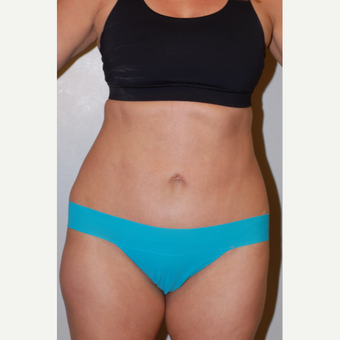 35-44 year old woman treated with Tummy Tuck after 3129413