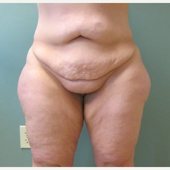 45-54 year old woman treated with Laser Liposuction before 2618761