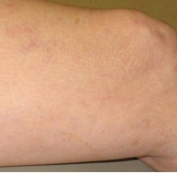 55-64 year old woman treated with sclerotherapy after 1652200