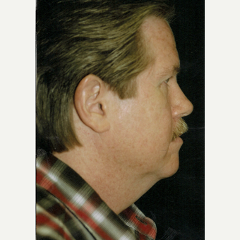 55-64 year old man treated with Facelift before 3271838