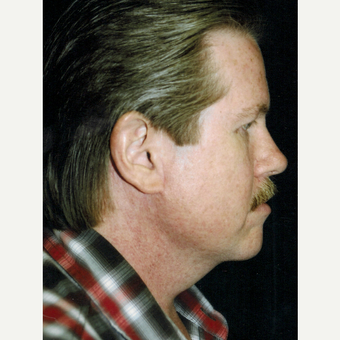 55-64 year old man treated with Facelift after 3271838