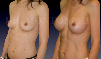 Breast implant before 1123295