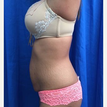 25-34 year old woman treated with Tummy Tuck before 3201260