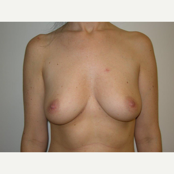25-34 year old woman treated with Breast Augmentation before 3239266