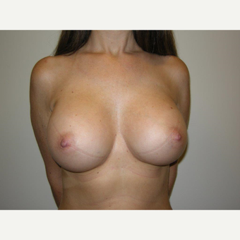 25-34 year old woman treated with Breast Augmentation after 3239266