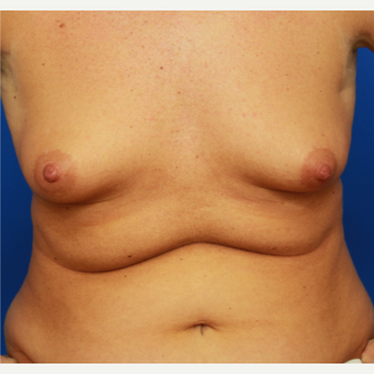32- year old woman treated with Breast Augmentation before 3108687