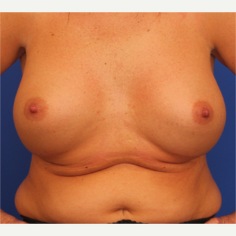 32- year old woman treated with Breast Augmentation after 3108687