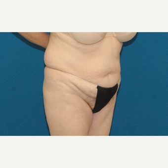 57 year old female treated with a tummy tuck before 2858808