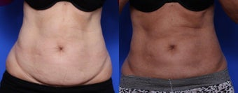 Coolsculpting before 619568