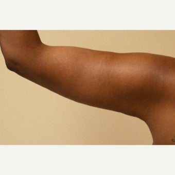 35-44 year old woman treated with Arm Lift after 2039021