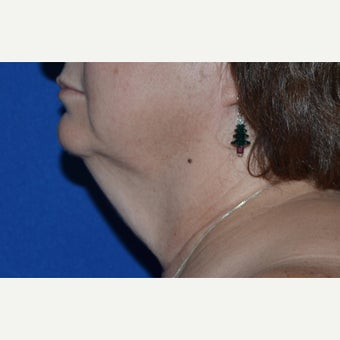 45-54 year old woman treated with Facelift before 1728644