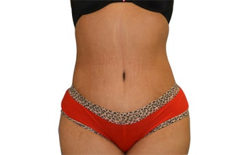 3 Month Post Operative Tummy Tuck after 1112639