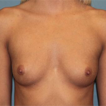 28 year old has Breast Augmentation to improve size and symmetry before 3465194