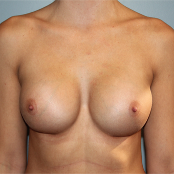 28 year old has Breast Augmentation to improve size and symmetry after 3465194
