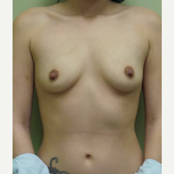 18-24 year old woman treated with Breast Augmentation before 3021905