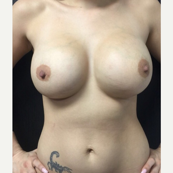 18-24 year old woman treated with Breast Augmentation after 3021905