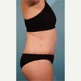 35-44 year old woman treated with Tummy Tuck after 3016676
