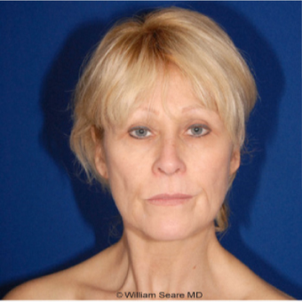 Cheek Augmentation with Natural Fat Transfer  Long - Term Results before 3104866