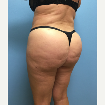 39 year-old woman treated with Lipo 360 and Brazilian Butt Lift after 3065289