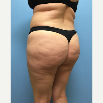 39 year-old woman treated with Lipo 360 and Brazilian Butt Lift before 3065289