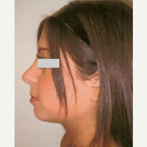 25-34 year old woman treated with Rhinoplasty after 3033168
