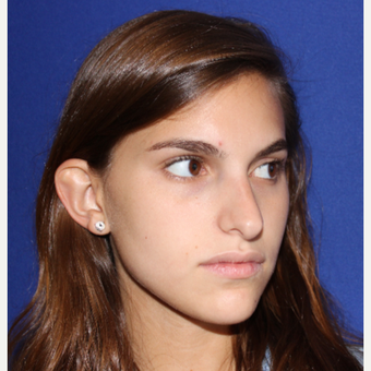 18-24 year old woman treated with Rhinoplasty before 3136994