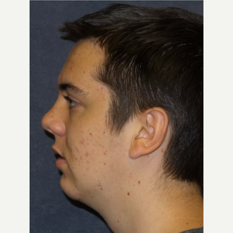 18-24 year old man treated with Chin Implant after 3467269
