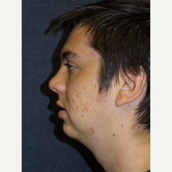 18-24 year old man treated with Chin Implant before 3467269