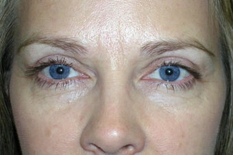 Ptosis Repair and Blepharoplasty after 238419