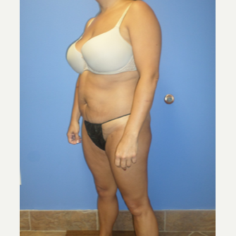 35-44 year old woman treated with Weight Loss after 3370158