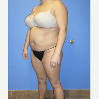35-44 year old woman treated with Weight Loss before 3370158