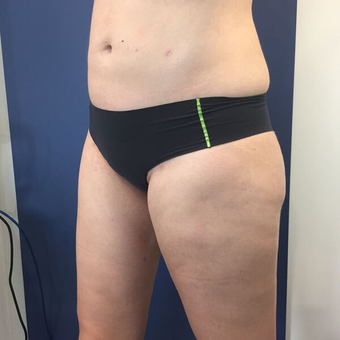 25-34 year old woman treated with Liposuction after 3415633