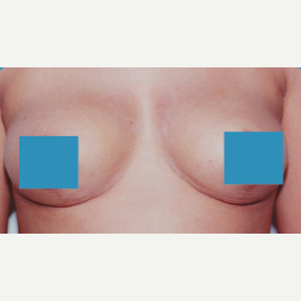35-44 year old woman treated with Breast Lift after 3374853