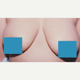 35-44 year old woman treated with Breast Lift before 3374853