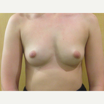 18-24 year old woman treated with Breast Augmentation before 3697442